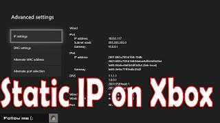 How to Setup Static IP on Xbox One