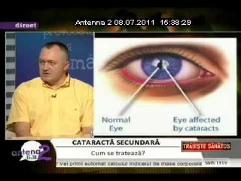Cum să corectăm miopia și astigmatismul