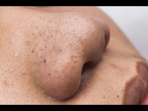 Cleaning Blackheads On His Face
