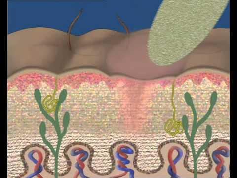 Haben Prostatitis führt zu Impotenz