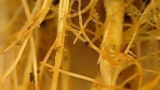 Root Aphids!  And how to kill them in your indoor garden.