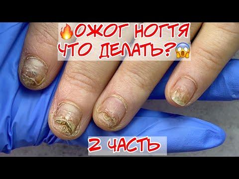 Pikkelysömör kezelése Cherkasy-ban