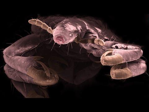 Simptomele viermilor lamblia la copii