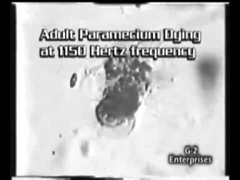 Bulating parasito palatandaan