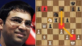 The Tiger is Hungry | Anand Takes Down Carlsen! | WRC | Round 9