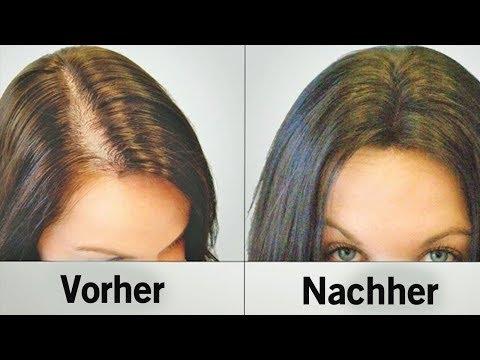 Diese natürlichen Hilfsmittel stoppen Haarausfall und lassen die Haare schneller wachsen!