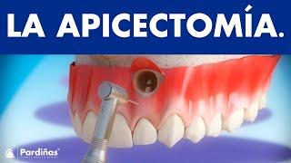 Apicectomía ©