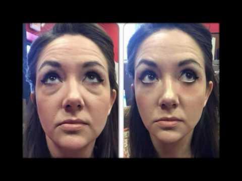 Аллергия мешки под глазами как избавиться