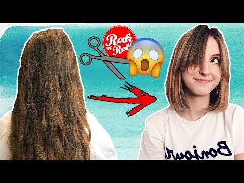 Włosy wypadły po utracie wagi