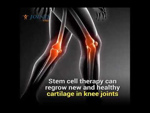Stem cell therapy to regrow new and healthy cartilage for knee joints