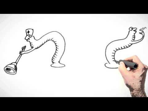 Warikosnyj die Erweiterungen Vene der Speiseröhre