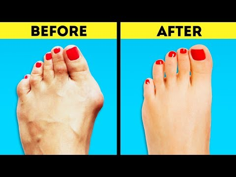 20 BODY HACKS TO MAKE YOUR LIFE SIMPLER