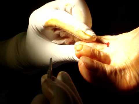 Ekvino Kawa varusny deformazione di piede