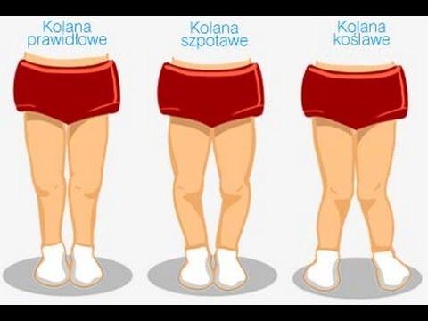 Valnusnaya deformacja stóp