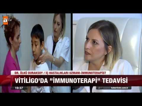 Vitiligo'da yeni tedavi yöntemi - atv Ana Haber