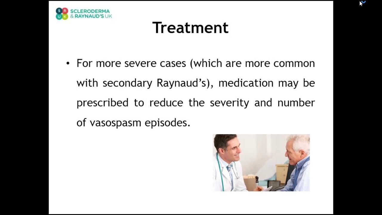 Muditha Samaranayaka, Consultant Rheumatologist at Salford Royal talking all about Raynaud's.