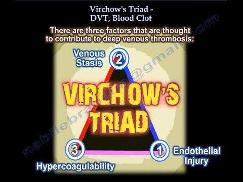 ฟุต thrombophlebitis เป็นรักษา