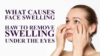 What causes FACE SWELLING How to Remove Swelling Under the Eyes