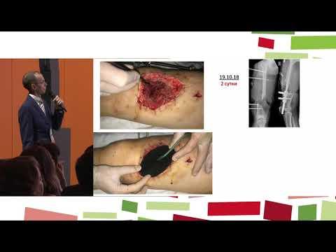 Сессия «Этюды гнойной хирургии» RU