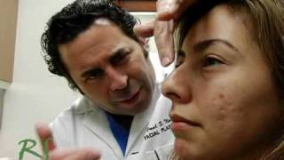 Ninguna cicatriz Cerrado Rinoplastia Nariz Job – No Scar Closed Rhinoplasty Nose Job