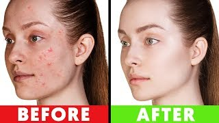 Avoid Skin Problems by Changing these 5 Eating Habits
