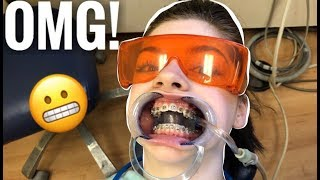 I GOT BRACES !! | Lauren Hennessy