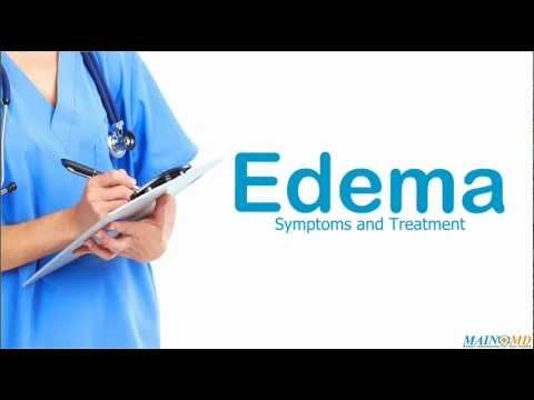 Video Edema: Symptoms and Treatment