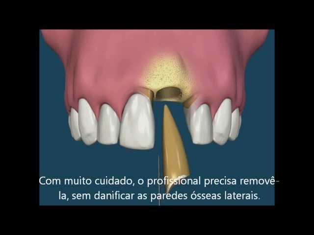 Implante dentário após extração