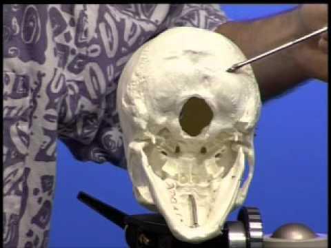 Front corporodesis mit zervikaler Osteochondrose bei Anwendung durchgeführt