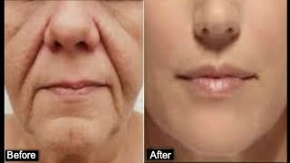 HOW TO REMOVE DEEP MOUTH WRINKLES REALLY FAST
