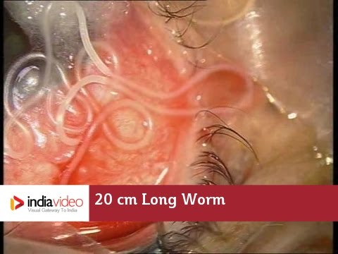 20 cm Long Worm In The Human Eye
