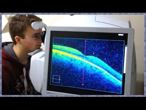 Scăderea acuității vizuale datorită picăturilor de ochi