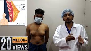 Grade 3 gynecomastia its diagnosis and treatment