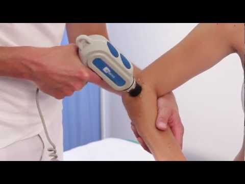Jak usunąć kości w nogach blisko dużego palca