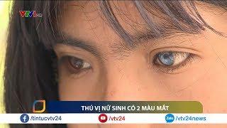 Nữ sinh đặc biệt với hai màu mắt   VTV24