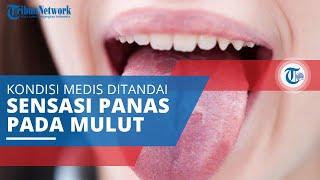 Burning Mouth Syndrome, Istilah Medis Gambarkan Kondisi yang Ditandai Sensasi Panas pada Mulut