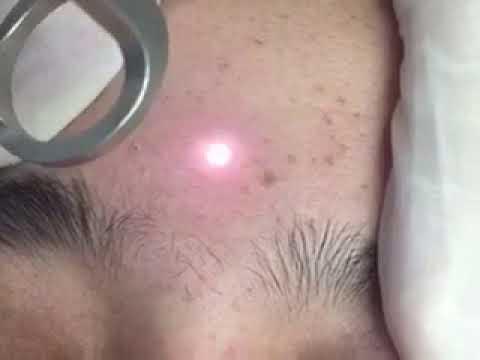 Hyper pigmentation spot