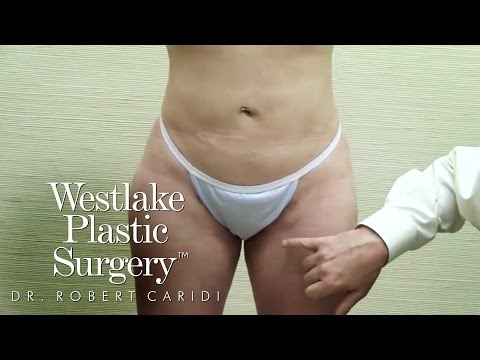 Educational Video: Best Liposuction Results