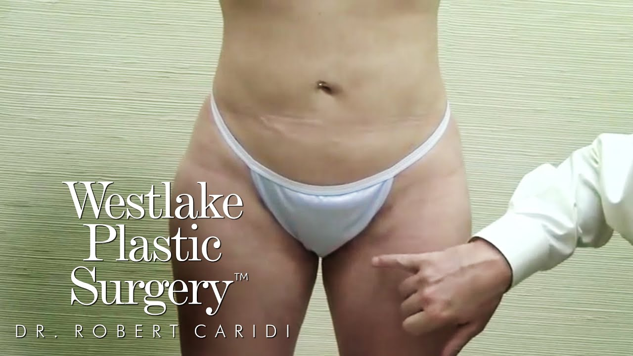 Improve Results of Liposuction Dr. Caridi Explains Post-Liposuction Rolling