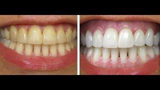 ماسک معجزه اسای سفید شدن دندان