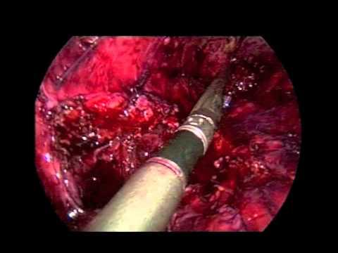 Leczenie przewlekłej przetoki żołądkowo-skórnej metodą laparoskopową