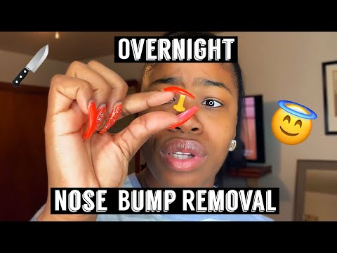 Download How I Removed My Nose Piercing Bump Keloid Video