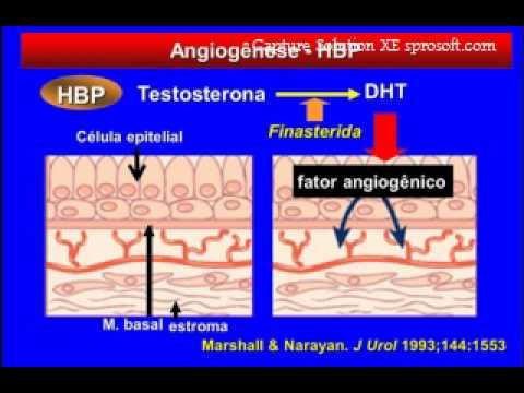 Amoxicillina prostata