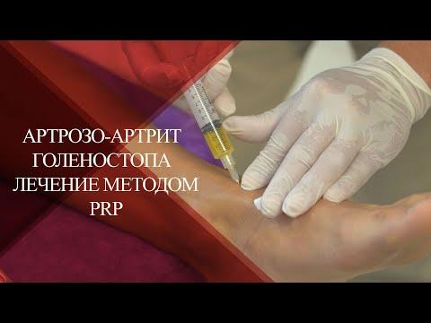 💉КАК ЛЕЧИТЬ ДЕФОРМИРУЮЩИЙ АРТРОЗ-АРТРИТ ГОЛЕНОСТОПА |PRP лечение после травм в PAN CLINIC