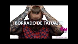 Borrado de tatuajes - CliniMedic