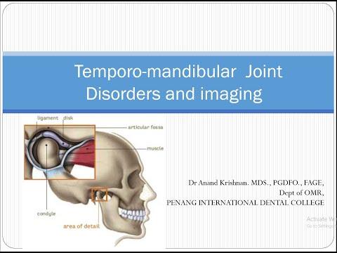 Care este tratamentul artrozei vertebrelor cervicale