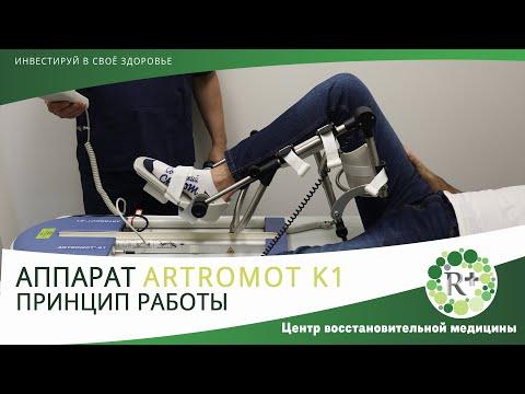 ARTROMOT K1. Принцип работы. Аппарат для разработки коленного и тазобедренного суставов