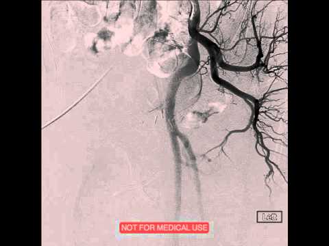 Prostatakrebs Strahlung Forum