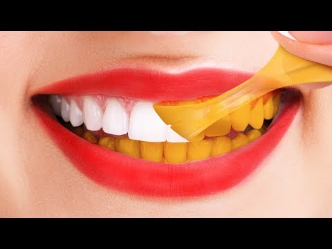 30 LIFE HACKS FOR A HOLLYWOOD SMILE