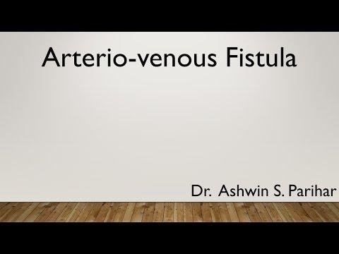 1. fokozatú artrózis a térdkezelésről